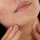 Acne Cleanser or Serum Product Testing